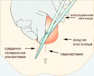 Перинеотомия,  эпизиотомия