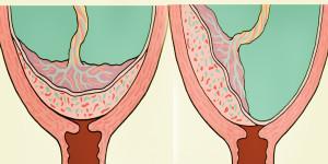 полное и неполное предлежание плаценты