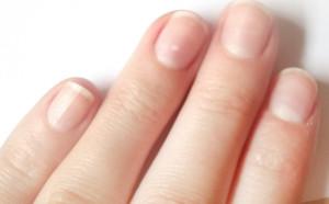 что вызывает белы пятна на ногтях